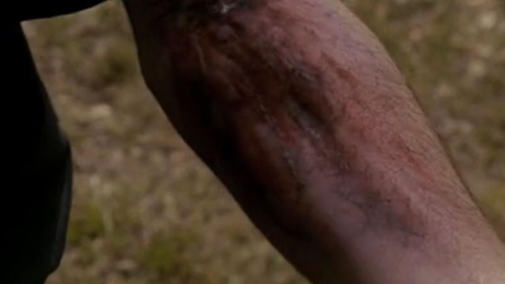 ¿Cómo se cura un vampiro de un mordisco de hombre lobo?
