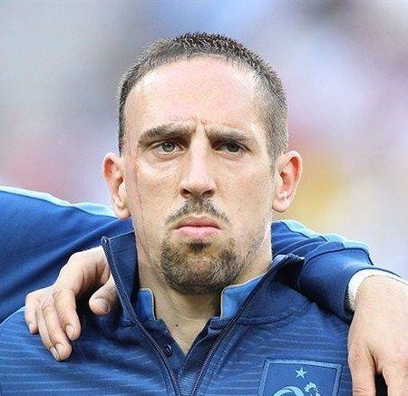 ¿Por qué tiene esa cicatriz Ribery?