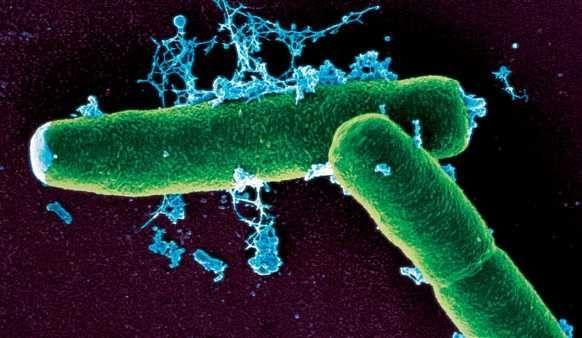 CIENCIAS Y NATURALEZA: ¿Qué quiere decir que una célula sea procariota?