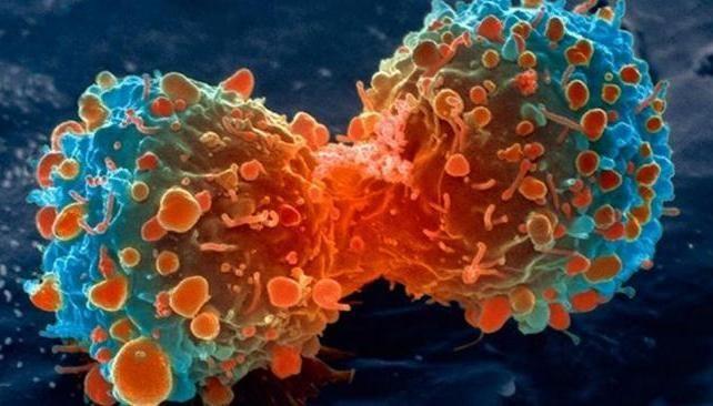 ¿Cuál de estas afirmaciones sobre el cáncer no es un mito?