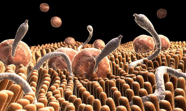 Según el último chequeo médico, tienes parásitos intestinales: