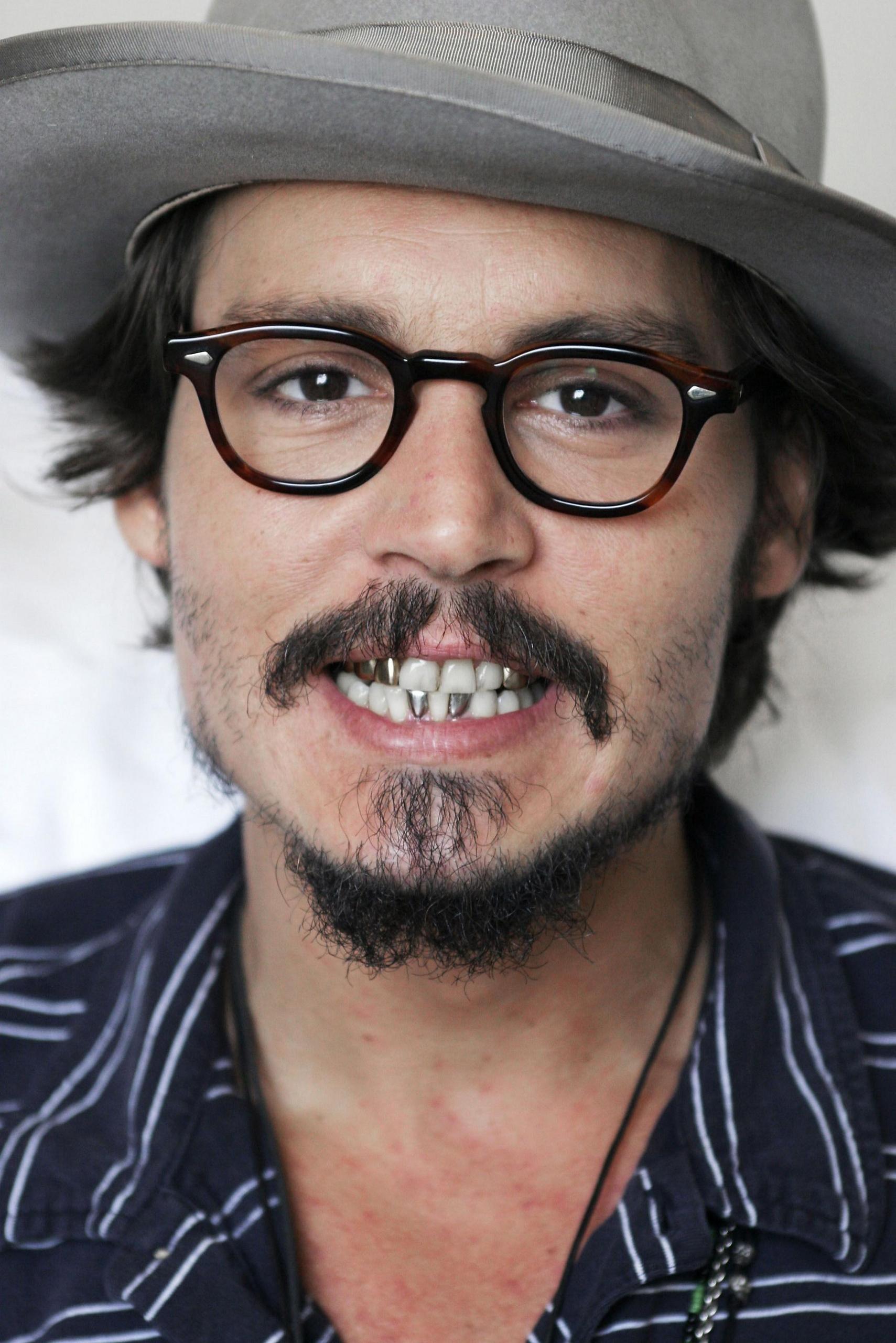 ¿Porqué lleva dientes de oro?