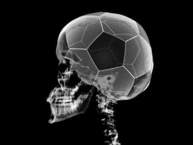 13607 - ¿Eres un enfermo por el fútbol?