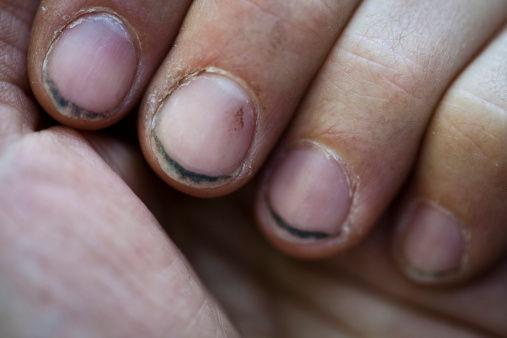 ¿Alguna vez te has quitado alguna suciedad que tuvieran las uñas de tus manos con los dientes?