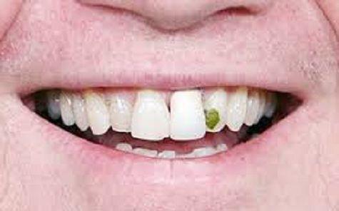¿Alguna vez que se te ha metido algún resto de comida entre los dientes, tras quitártelo te lo has vuelto a meter en la boca?
