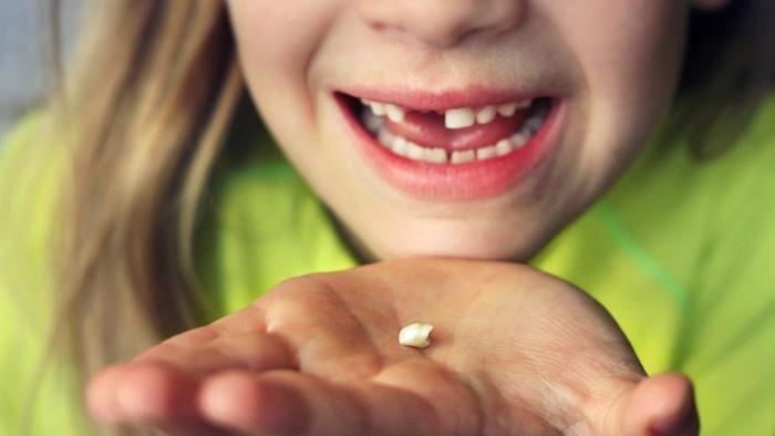 ¿Alguna vez perdiste un diente de leche de alguna manera totalmente ridícula?