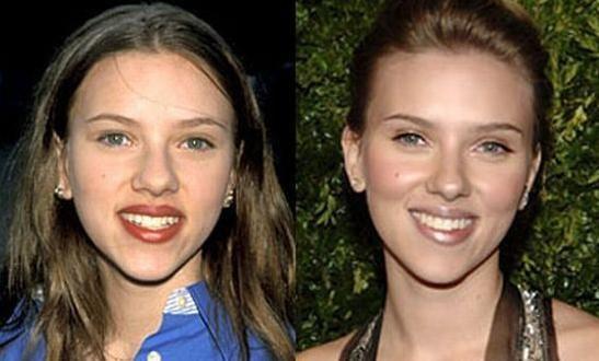 Scarlett Johansson (Nariz)