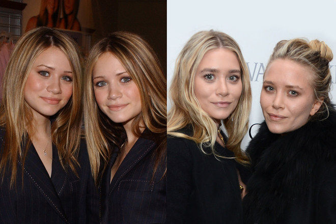 Ashley & Mary Kate Olsen (botox, labios y nariz)