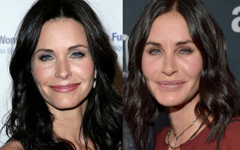 Courteney Cox (lifting, labios y pómulos)