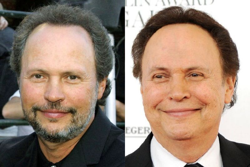 Billy Crystal.