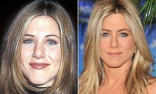 Jennifer Aniston (nariz)