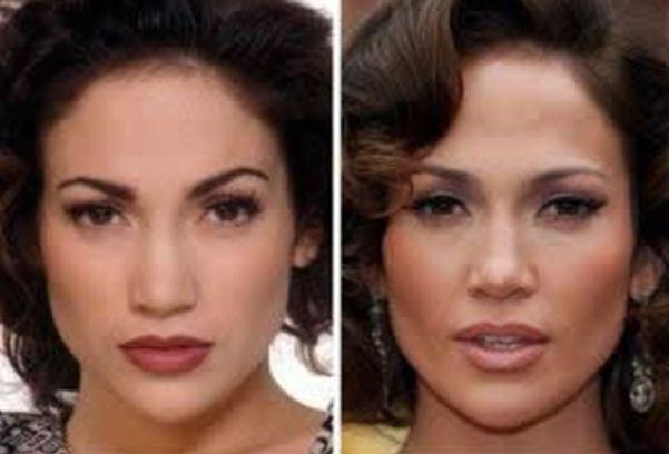 Jennifer Lopez (nariz)
