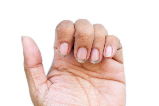 Sacarte suciedad de debajo las uñas