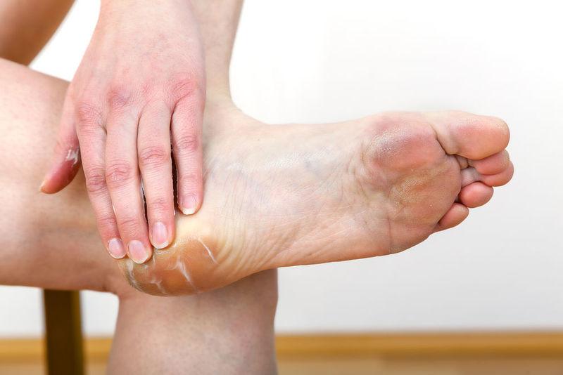 Quitarme pieles muertas del talón del pie